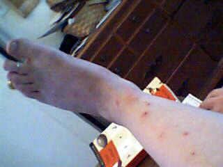 укусы на коже
